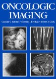 Book Cover Oncologic Imaging: A Clinical Perspective