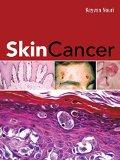 Book Cover Skin Cancer (Dermatology)