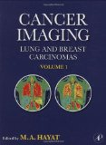 Book Cover Cancer Imaging: Lung and Breast Carcinomas