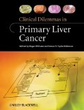 Book Cover Clinical Dilemmas in Primary Liver Cancer (Clinical Dilemmas (UK))
