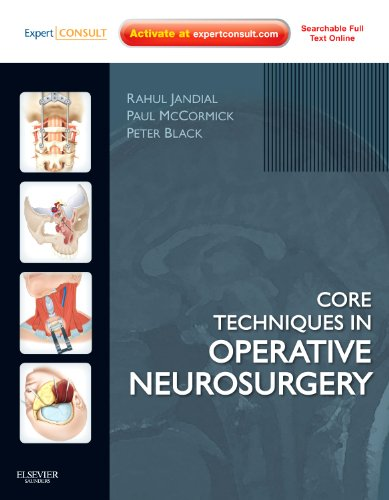 Neurosurgery Oral Board Review